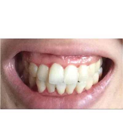 重庆牙齿整形多少钱_牙齿前凸矫正一般多少钱_39健康经验
