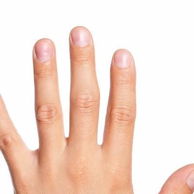 手骨折的话有什么症状