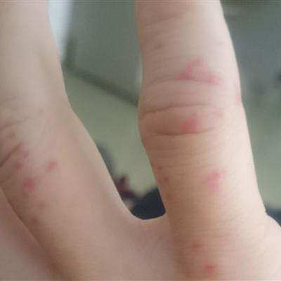 儿童的紫癜初期症状图片