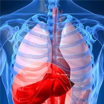 肝脏多发结节症状